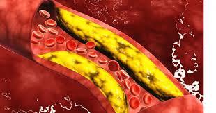 درمان کلسترول