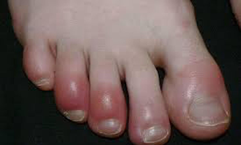 قرمزی پا در ویروس کرونا